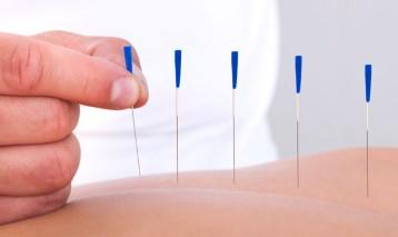 Intra-Muscular Stimulation (IMS)